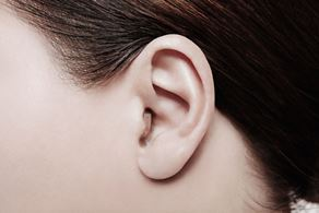 Widex CIC slušni aparati u uhu
